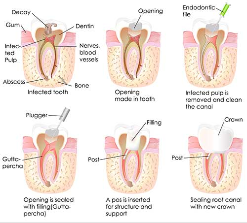 Root Canal Therapy in The East Bronx